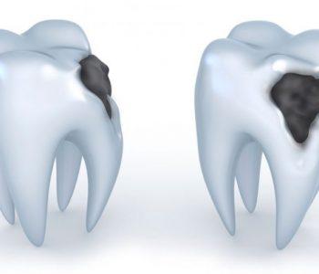 Caria dentară şi programarea la stomatolog