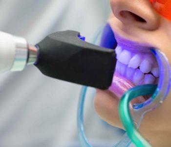 Albirea dentară cu laser