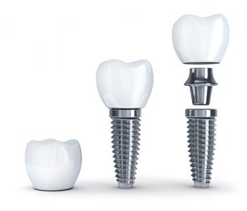 Care sunt avantajele implanturilor dentare?