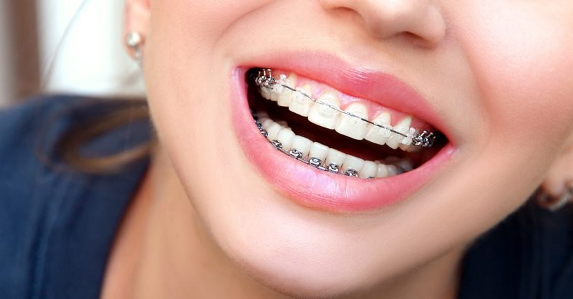 aparate dentare in cluj Ortoelitte
